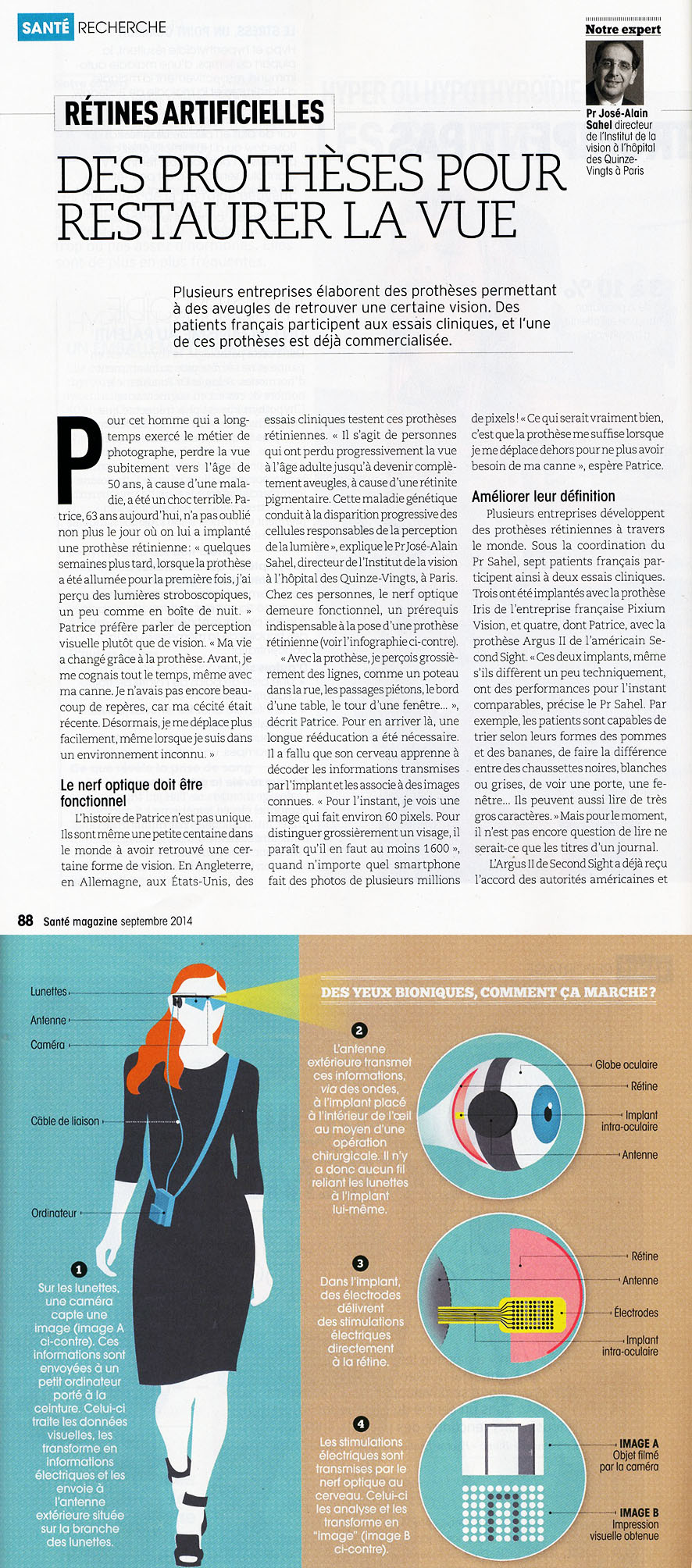 rétine artificielle_sept2014
